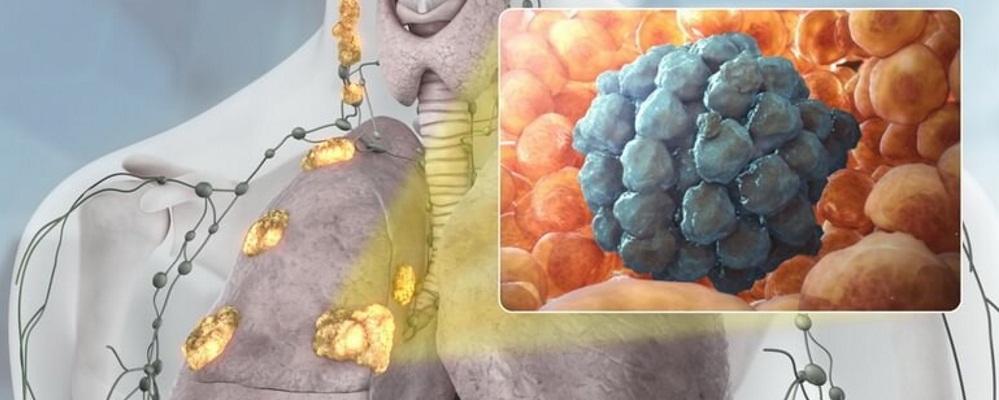 Рак кишечника – это злокачественное перерождение железистого эпителия преимущественно ободочной или прямой кишки.