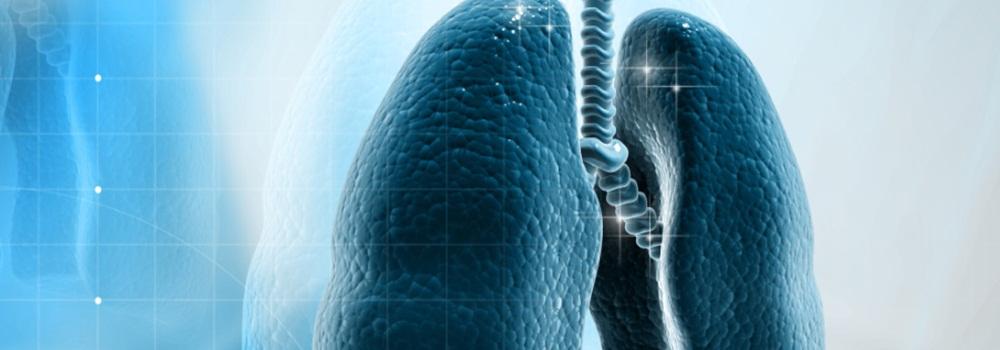 Лечение мелкоклеточного рака легких
