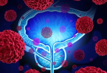 Лечение рака простаты 4 стадии с метастазами