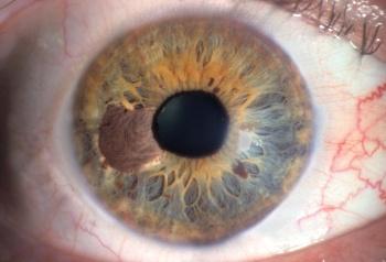 Лечение меланомы глаза