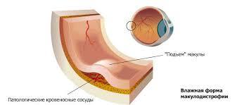 Лечение «влажной» формы  макулодистрофии глаза стволовыми клетками
