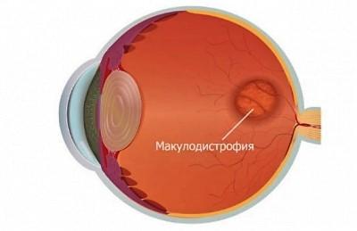 Лечение «сухой» формы возрастной макулодистрофии глаза стволовыми клетками